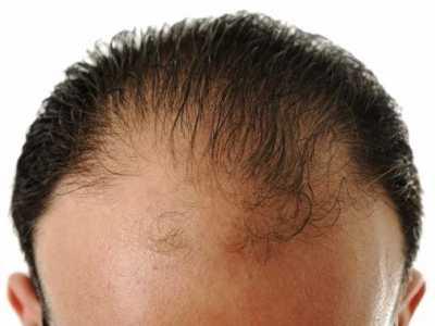 男人秃顶是什么原因 男人不可不知的10大秃头原因