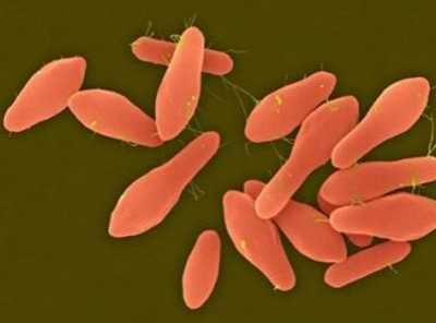 世界上最毒的细菌 一亿分之6克肉杆菌毒素就能致死